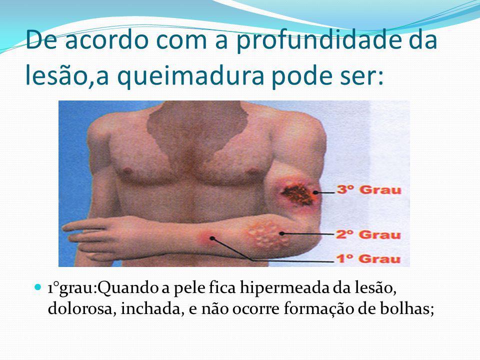 De acordo com a profundidade da lesão,a queimadura pode ser: 1°grau:Quando a pele fica hipermeada da lesão, dolorosa, inchada, e não ocorre formação d