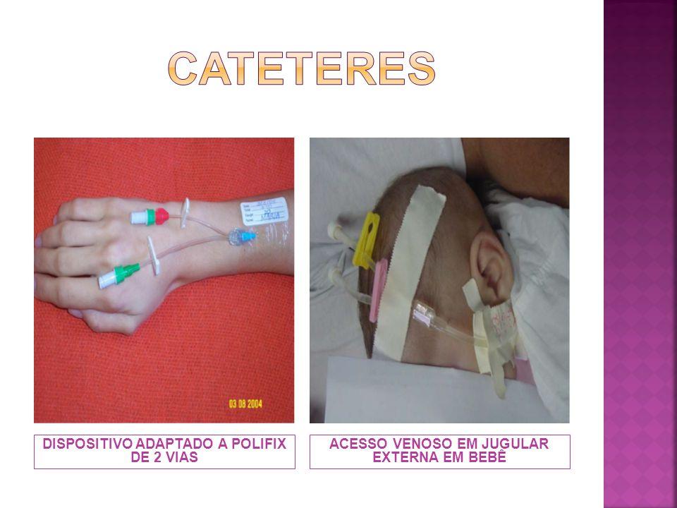 CATETER VENOSO CENTRAL (CVC)CATETER PARA QUIMIOTERAPIA
