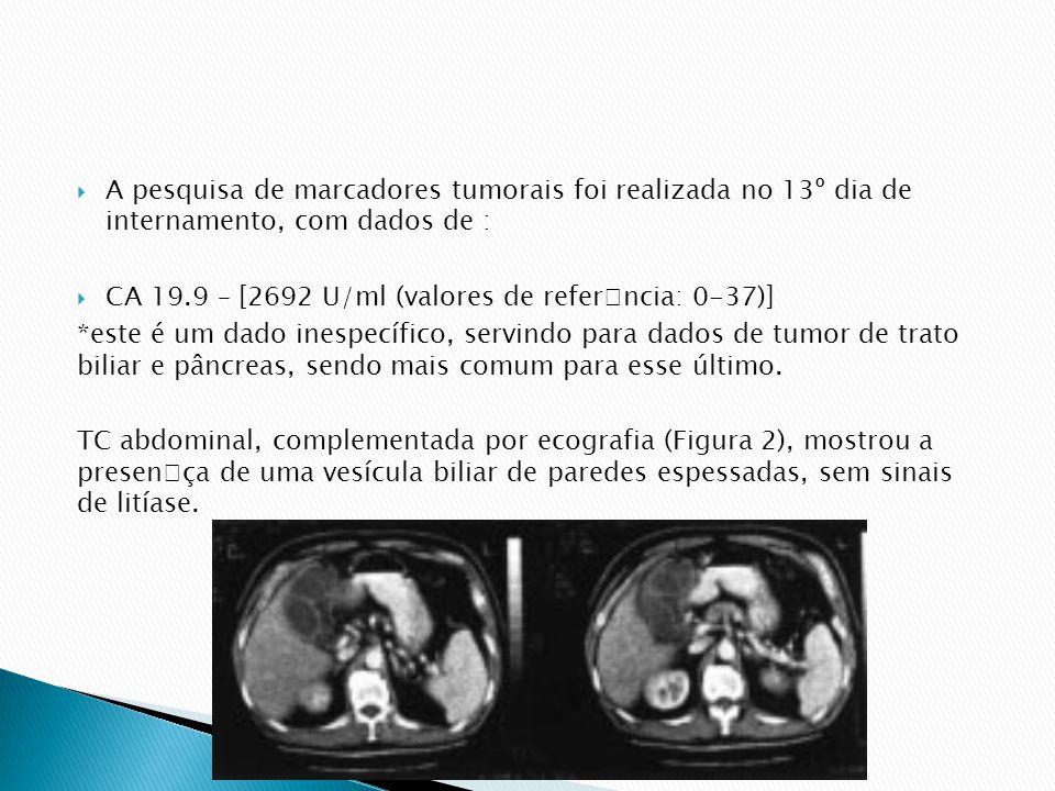 A pesquisa de marcadores tumorais foi realizada no 13º dia de internamento, com dados de : CA 19.9 – [2692 U/ml (valores de referncia: 0-37)] *este é um dado inespecífico, servindo para dados de tumor de trato biliar e pâncreas, sendo mais comum para esse último.