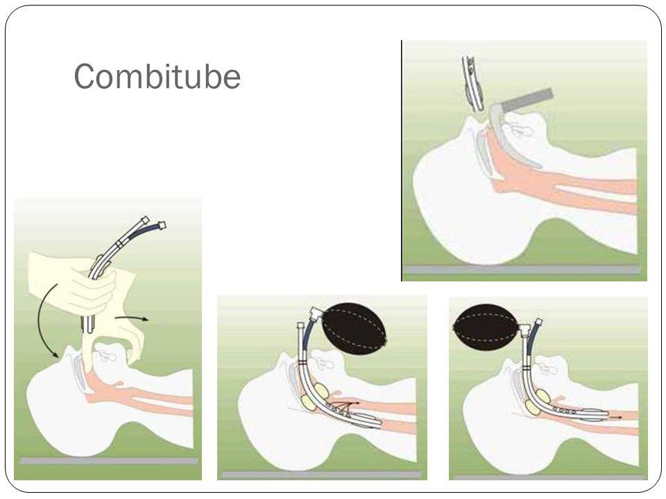 Fibroscopia Visão direta Menor possibilidade de erro Menos traumática Intubação acordado Treinamento