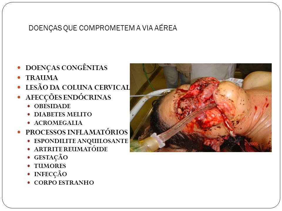 56 MANUTENÇÃO DAS VIAS AÉREAS EXAME FÍSICO CONFORMAÇÃO DA FACE ASSIMETRIA FACIAL MICROGNATIA