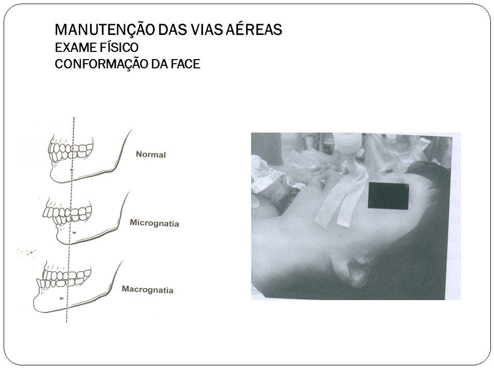 58 MANUTENÇÃO DAS VIAS AÉREAS EXAME FÍSICO ABERTURA DA BOCA Distância interincisivos deve ser maior que 3cm