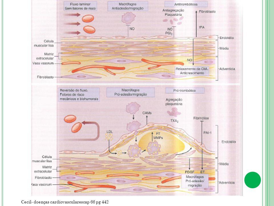 Cecil- doenças cardiovascularescap 66 pg 442
