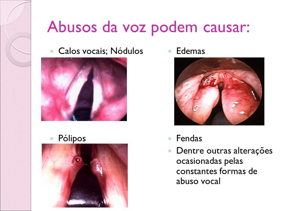 Abusos da voz podem causar: Calos vocais; Nódulos Pólipos Edemas Fendas Dentre outras alterações ocasionadas pelas constantes formas de abuso vocal