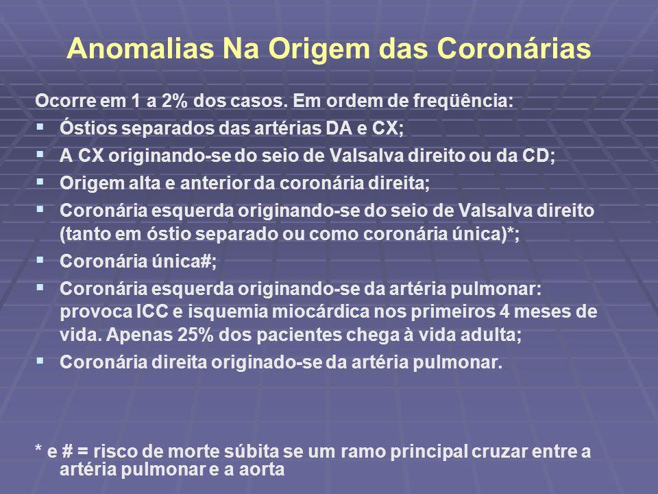 Outras anomalias Fístula coronária Fístula coronária Ponte miocárdica Ponte miocárdica Aneurismas Aneurismas