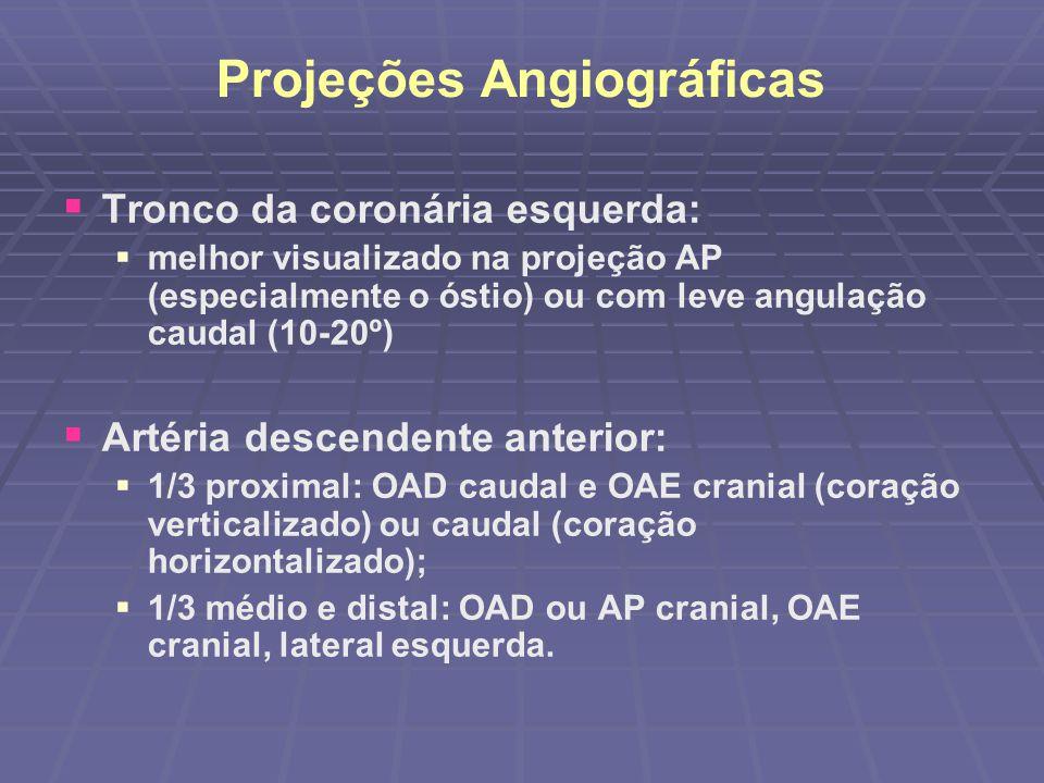 Artéria circunflexa: 1/3 proximal: OAD caudal, OAE caudal e perfil E; 1/3 médio e distal: OD caudal e perfil E; Origem dos ramos marginais: AP ou OAD caudal; Ramo DP (dominância E): OAD cranial e OAE cranial.