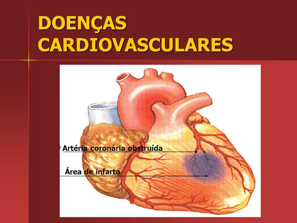Artéria coronária obstruída Área de infarto Artéria coronária obstruída