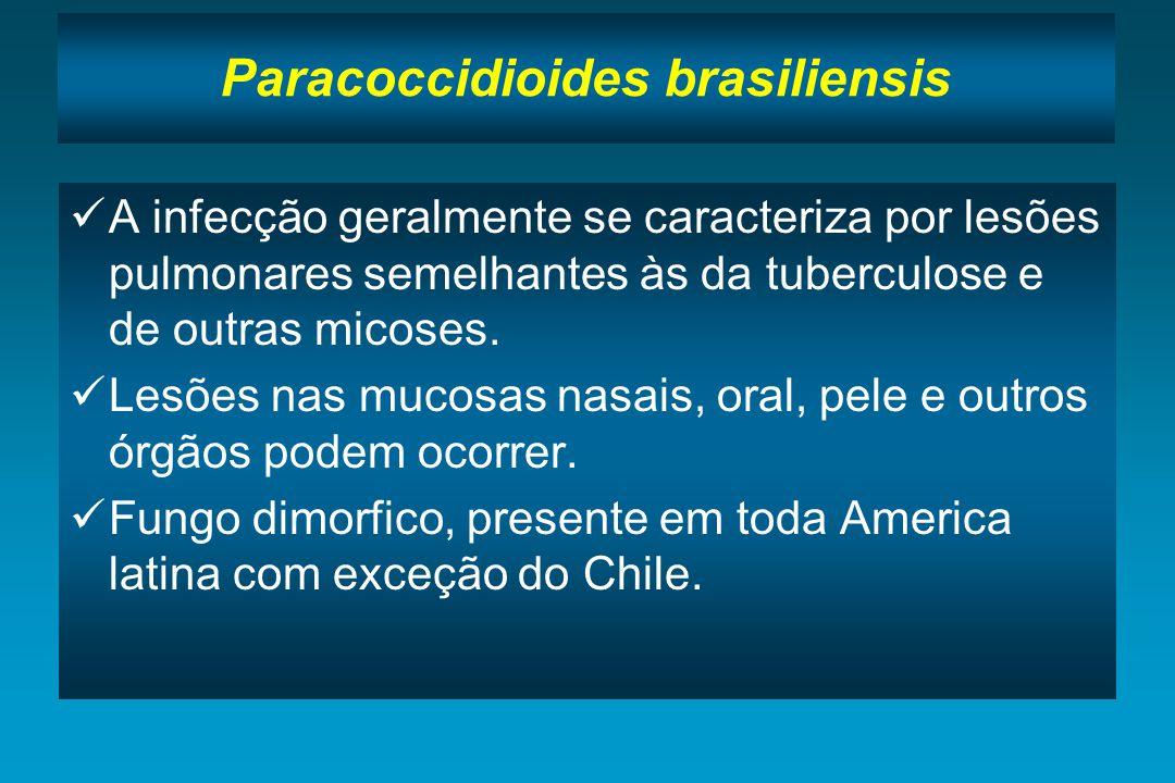 Paracoccidioides brasiliensis A infecção geralmente se caracteriza por lesões pulmonares semelhantes às da tuberculose e de outras micoses. Lesões nas