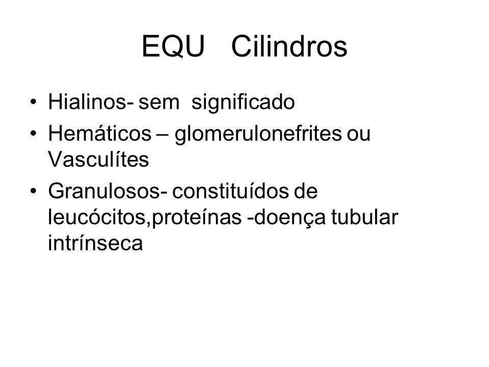 EQU Cilindros Hialinos- sem significado Hemáticos – glomerulonefrites ou Vasculítes Granulosos- constituídos de leucócitos,proteínas -doença tubular i