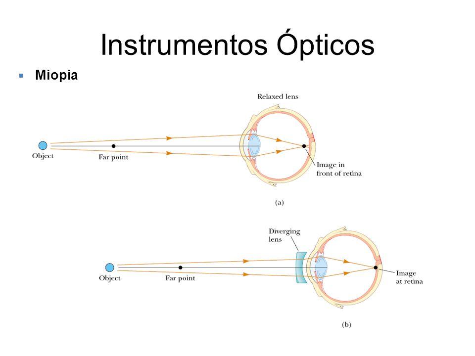 Instrumentos Ópticos Miopia