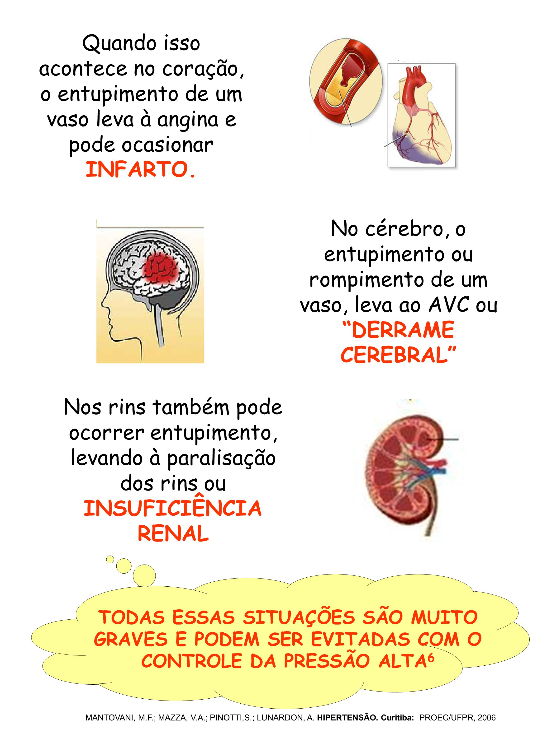 Quando isso acontece no coração, o entupimento de um vaso leva à angina e pode ocasionar INFARTO. No cérebro, o entupimento ou rompimento de um vaso,