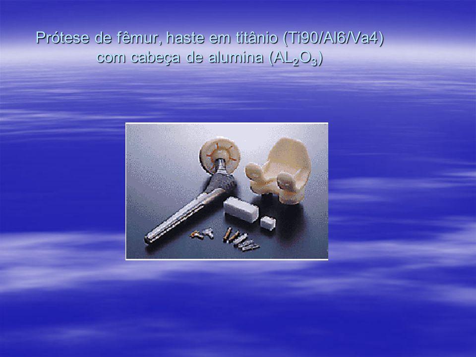 Prótese de fêmur, haste em titânio (Ti90/Al6/Va4) com cabeça de alumina (AL 2 O 3 )