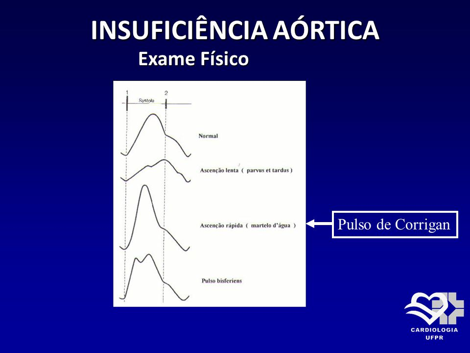 INSUFICIÊNCIA AÓRTICA Exame Físico Exame Físico Pulso de Corrigan