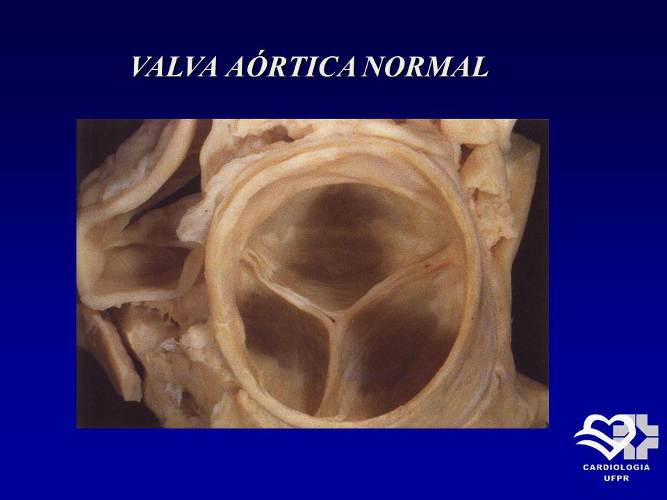 INSUFICIÊNCIA AÓRTICA AGUDA Tratamento Tratamento Em geral é severa e exige tratamento Em geral é severa e exige tratamento cirúrgico.