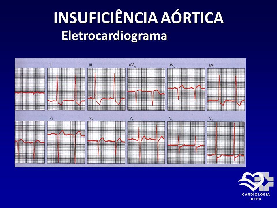 INSUFICIÊNCIA AÓRTICA Eletrocardiograma Eletrocardiograma