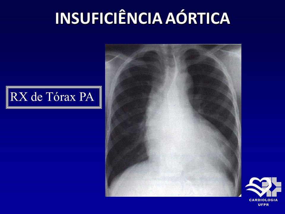 INSUFICIÊNCIA AÓRTICA RX de Tórax PA