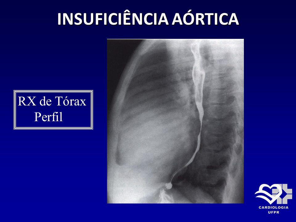 INSUFICIÊNCIA AÓRTICA RX de Tórax Perfil