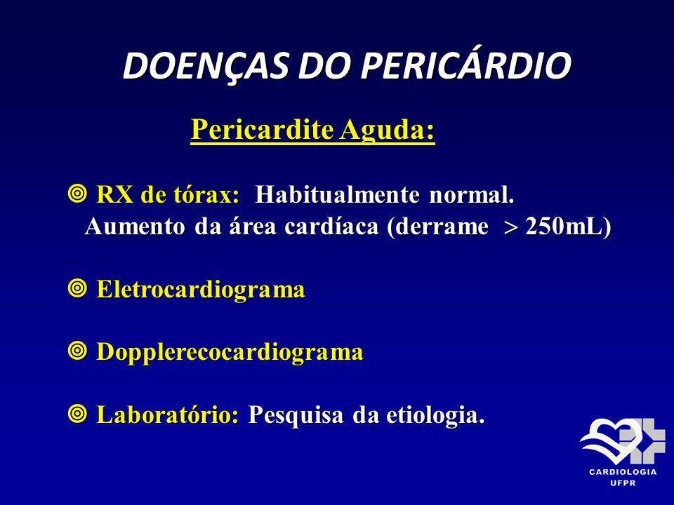 DOENÇAS DO PERICÁRDIO DOENÇAS DO PERICÁRDIO Pericardite Aguda: Pericardite Aguda: RX de tórax: Habitualmente normal. RX de tórax: Habitualmente normal