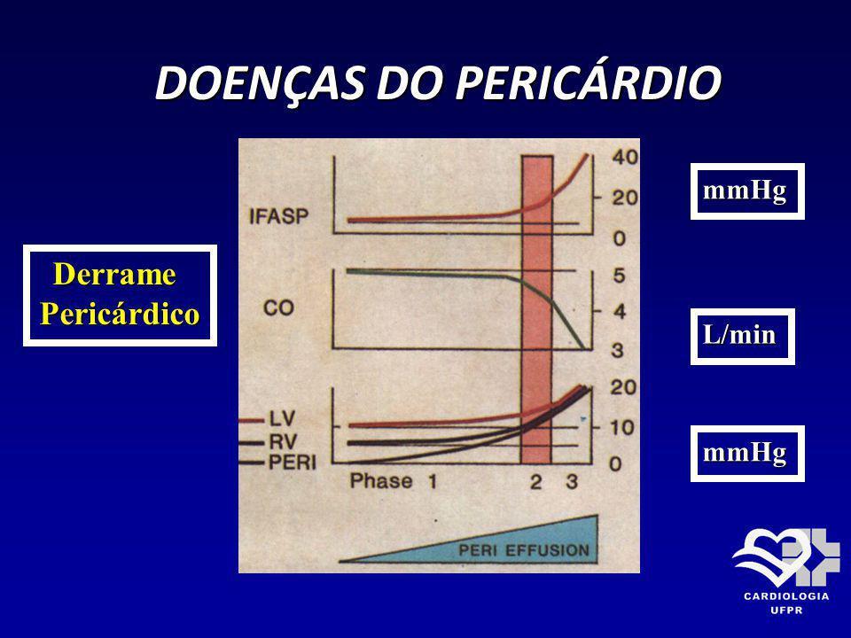 DOENÇAS DO PERICÁRDIO DOENÇAS DO PERICÁRDIO DerramePericárdico mmHg L/min mmHg