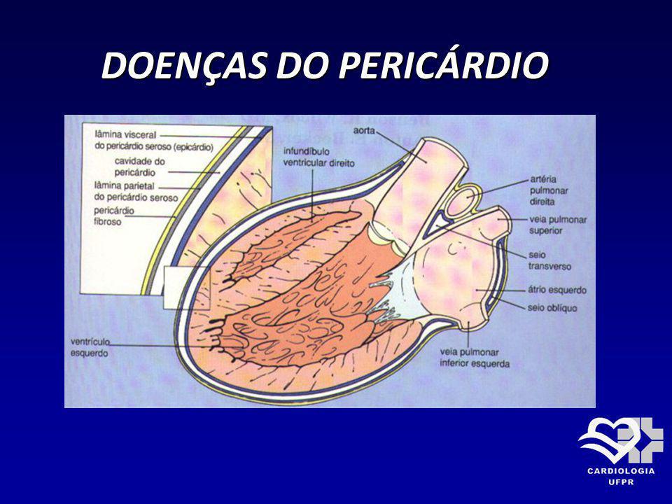 DOENÇAS DO PERICÁRDIO DOENÇAS DO PERICÁRDIO PERICARDITE CONSTRITIVA PERICARDITE CONSTRITIVA RX DE TÓRAX: RX DE TÓRAX: * Aumento da área cardíaca ( 58% pequeno) * Aumento da área cardíaca ( 58% pequeno) * Sem congestão pulmonar acentuada * Sem congestão pulmonar acentuada * Calcificação pericárdica 40% (sinal + útil) * Calcificação pericárdica 40% (sinal + útil) * Derrame pleural 55% * Derrame pleural 55% * Átrio esquerdo aumentado 33% * Átrio esquerdo aumentado 33%