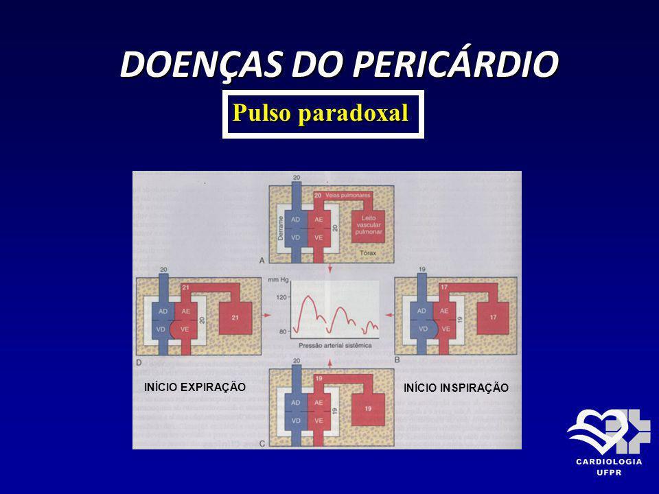 DOENÇAS DO PERICÁRDIO DOENÇAS DO PERICÁRDIO Pulso paradoxal INÍCIO EXPIRAÇÃO INÍCIO INSPIRAÇÃO
