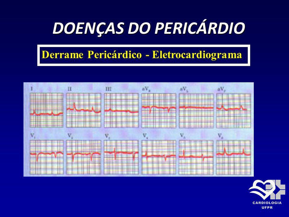 DOENÇAS DO PERICÁRDIO DOENÇAS DO PERICÁRDIO Derrame Pericárdico - Eletrocardiograma