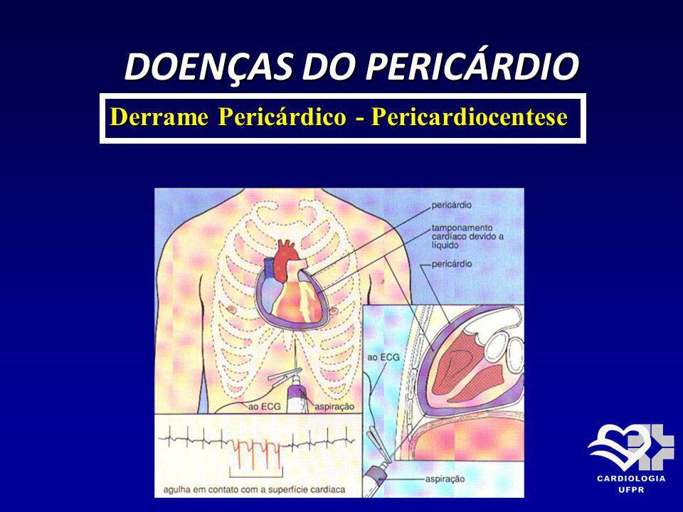 DOENÇAS DO PERICÁRDIO DOENÇAS DO PERICÁRDIO Derrame Pericárdico - Pericardiocentese