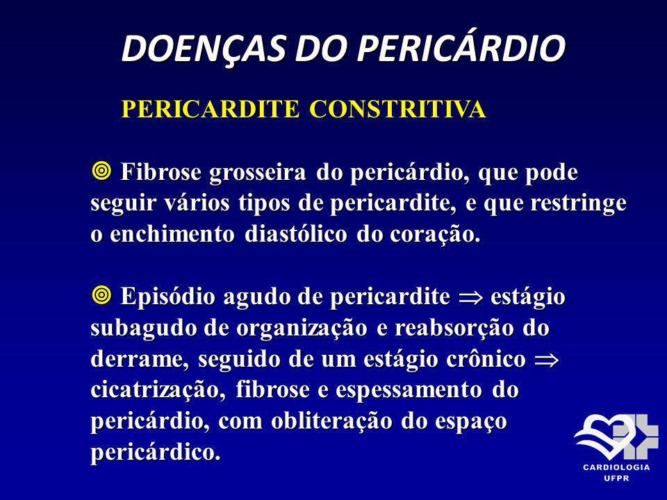 DOENÇAS DO PERICÁRDIO DOENÇAS DO PERICÁRDIO PERICARDITE CONSTRITIVA PERICARDITE CONSTRITIVA Fibrose grosseira do pericárdio, que pode seguir vários ti