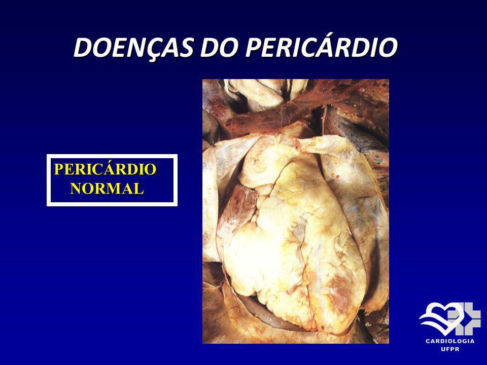 DOENÇAS DO PERICÁRDIO DOENÇAS DO PERICÁRDIO Pericardite Aguda - Eletrocardiograma