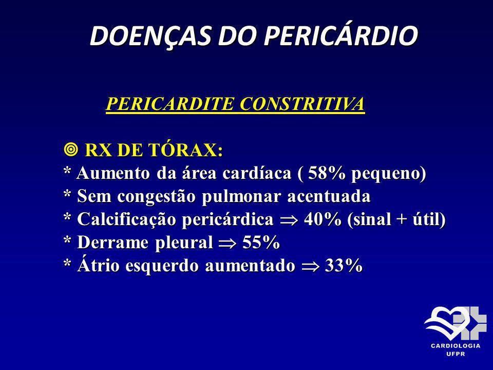 DOENÇAS DO PERICÁRDIO DOENÇAS DO PERICÁRDIO PERICARDITE CONSTRITIVA PERICARDITE CONSTRITIVA RX DE TÓRAX: RX DE TÓRAX: * Aumento da área cardíaca ( 58%