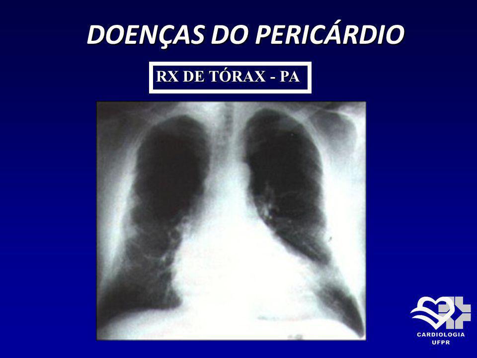 DOENÇAS DO PERICÁRDIO DOENÇAS DO PERICÁRDIO RX DE TÓRAX - PA