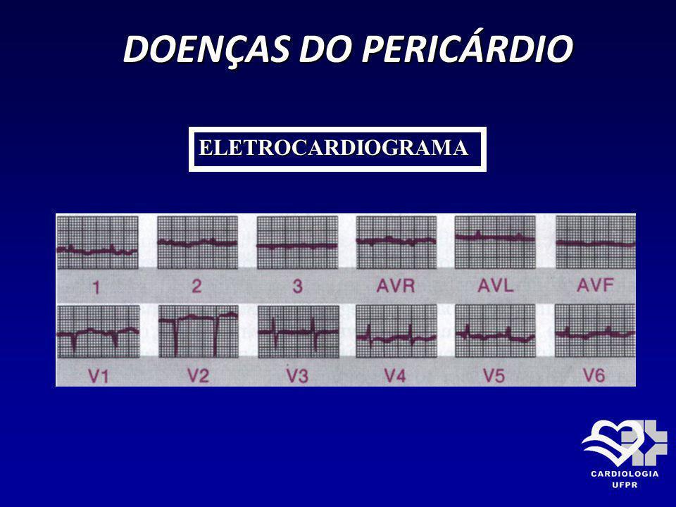 DOENÇAS DO PERICÁRDIO DOENÇAS DO PERICÁRDIO ELETROCARDIOGRAMA