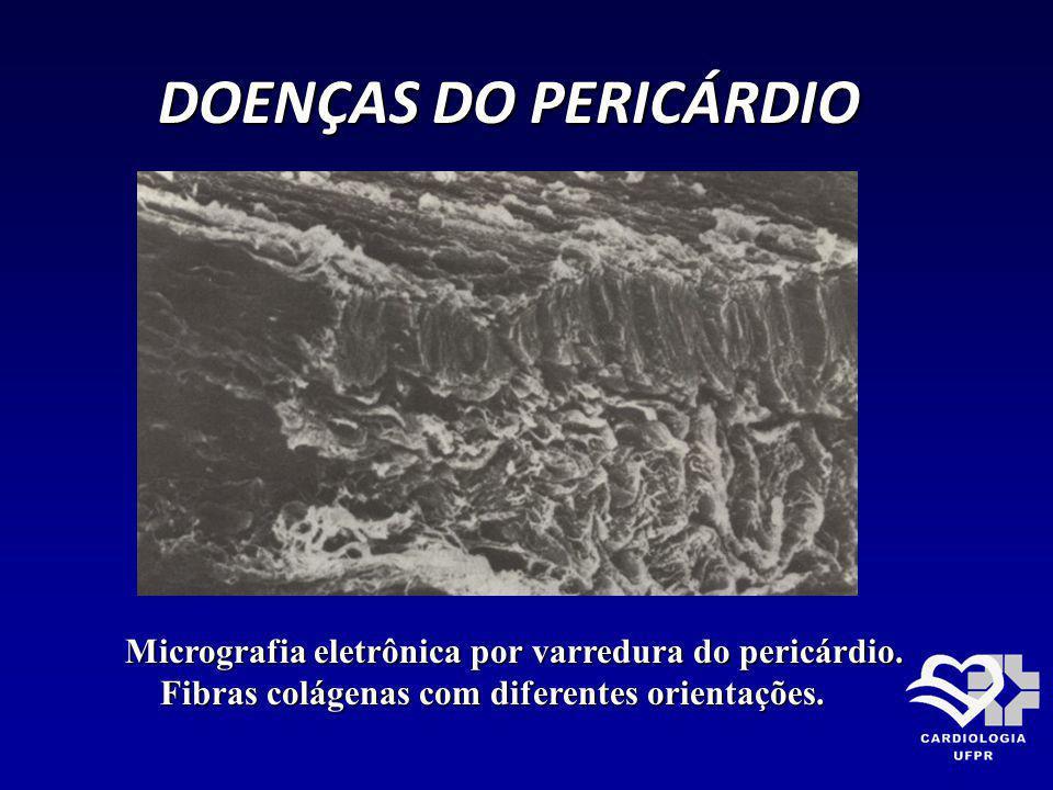 DOENÇAS DO PERICÁRDIO Micrografia eletrônica por varredura do pericárdio. Fibras colágenas com diferentes orientações. Fibras colágenas com diferentes