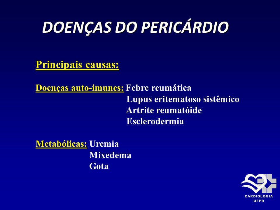 DOENÇAS DO PERICÁRDIO Principais causas: Pós-infarto do miocárdio: Precoce - 72hs Tardio - 30 a 180 dias ( Sínd.