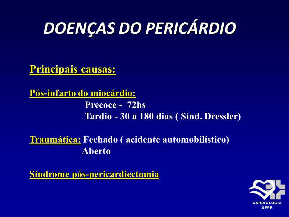 DOENÇAS DO PERICÁRDIO Principais causas: Pós-infarto do miocárdio: Precoce - 72hs Tardio - 30 a 180 dias ( Sínd. Dressler) Traumática: Traumática: Fec