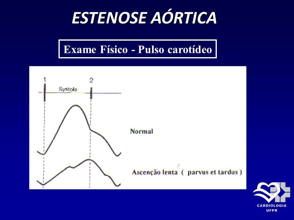 ESTENOSE AÓRTICA Exame Físico - Pulso carotídeo
