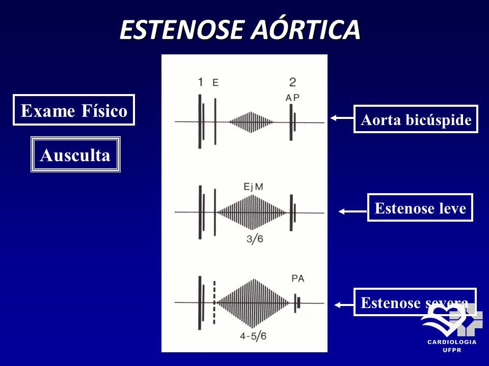 ESTENOSE AÓRTICA Exame Físico Ausculta Aorta bicúspide Estenose leve Estenose severa