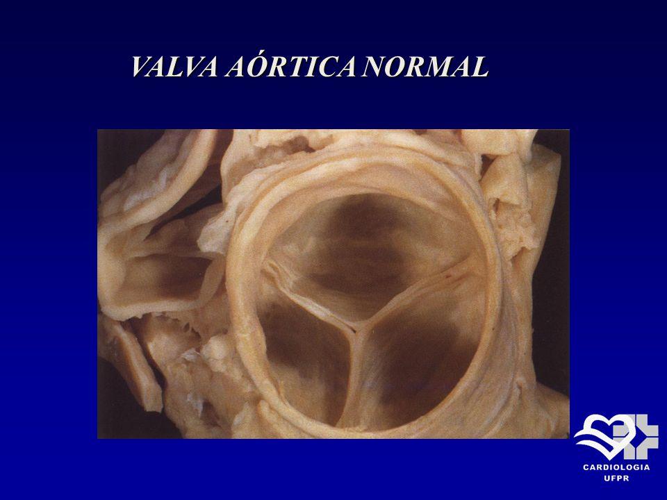 ESTENOSE AÓRTICA Fisiopatologia ( II ) Obstrução crítica do VE: Gradiente sistólico médio 40mmHg ( em DC normal) Orifício valvar: < 1,0 cm 2 em adulto < 0,6 cm 2 /m 2
