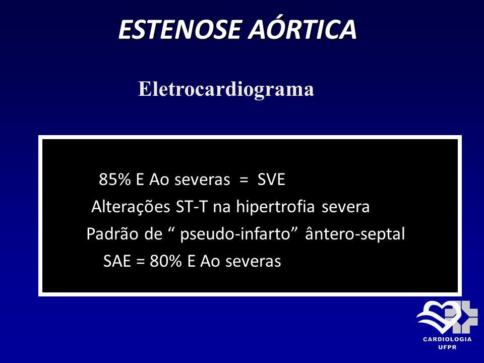 ESTENOSE AÓRTICA 85% E Ao severas = SVE Alterações ST-T na hipertrofia severa Padrão de pseudo-infarto ântero-septal SAE = 80% E Ao severas Eletrocard