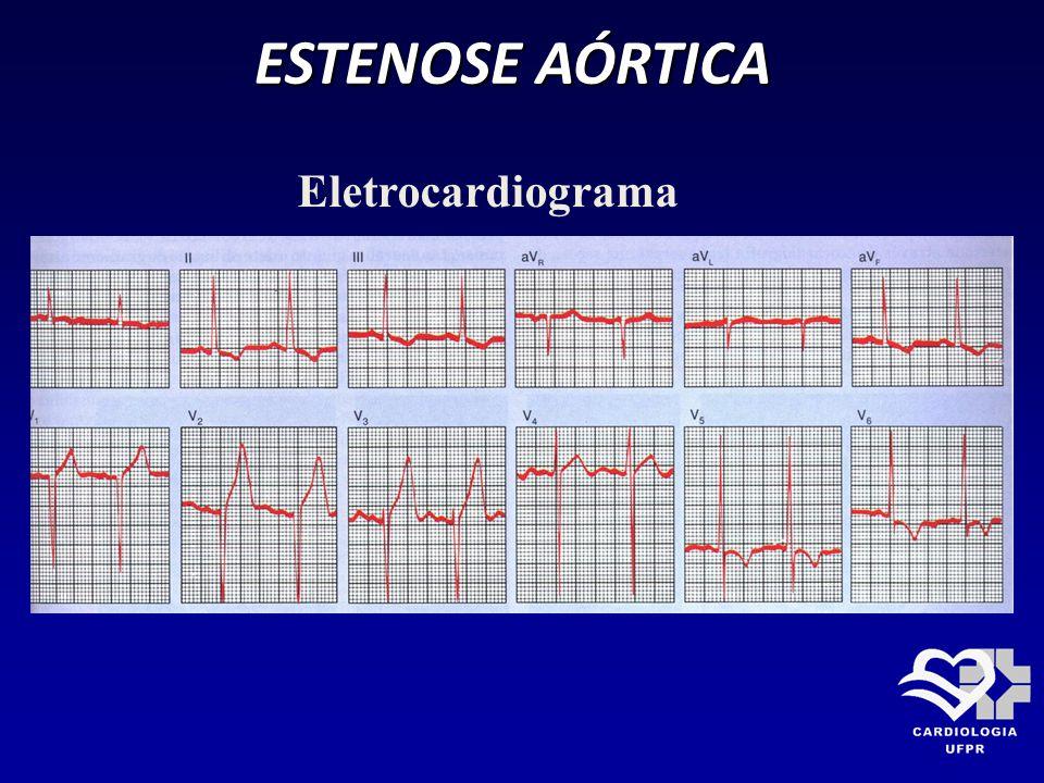ESTENOSE AÓRTICA Eletrocardiograma