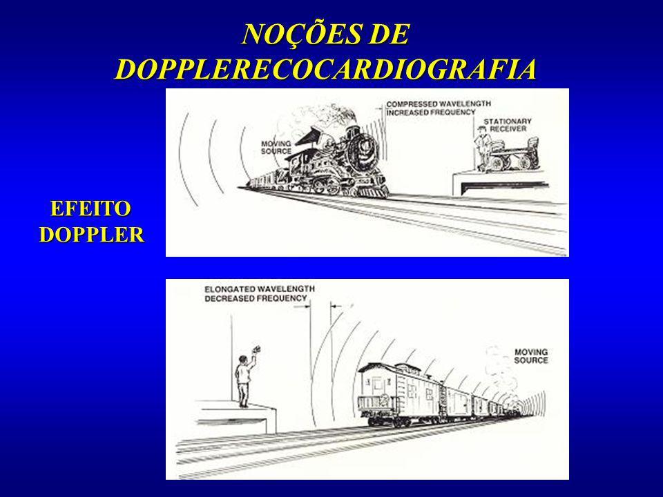 NOÇÕES DE DOPPLERECOCARDIOGRAFIA EFEITO DOPPLER