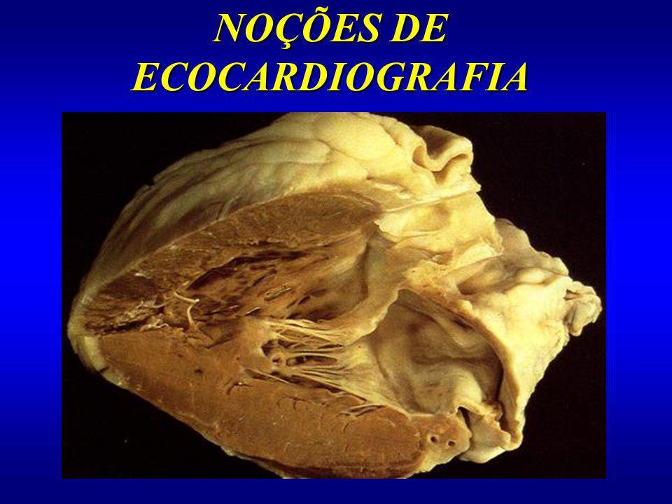 NOÇÕES DE ECOCARDIOGRAFIA