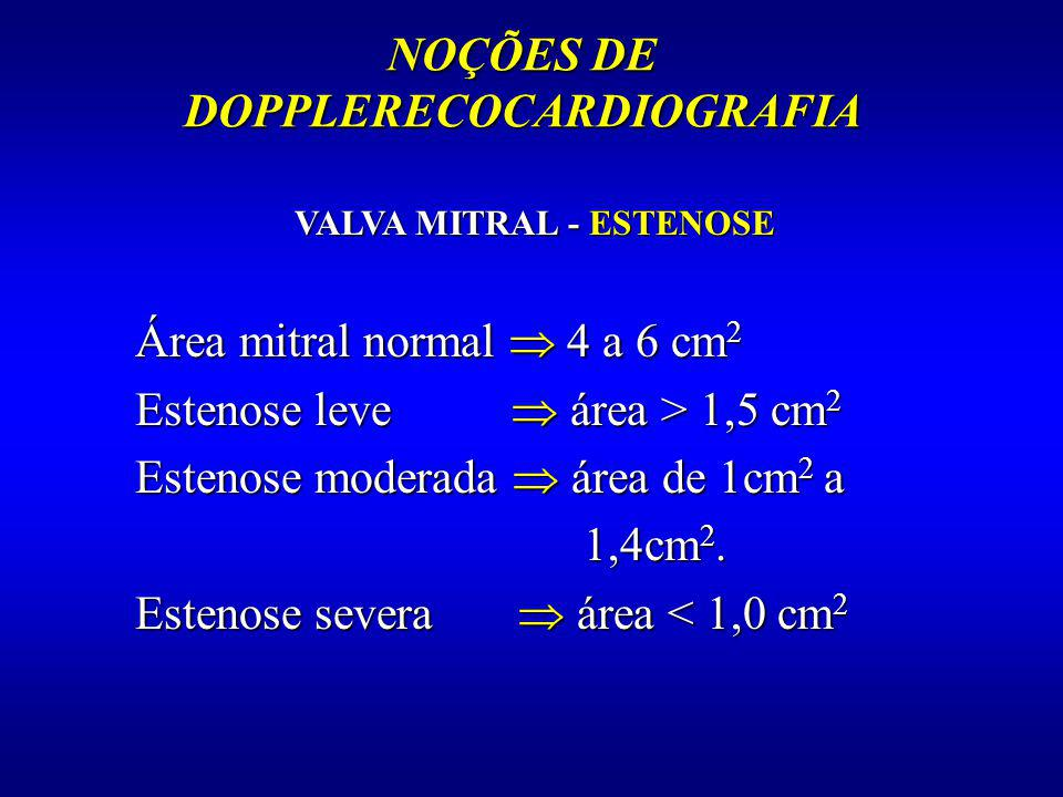 NOÇÕES DE DOPPLERECOCARDIOGRAFIA VALVA MITRAL - ESTENOSE Área mitral normal 4 a 6 cm 2 Estenose leve área > 1,5 cm 2 Estenose moderada área de 1cm 2 a