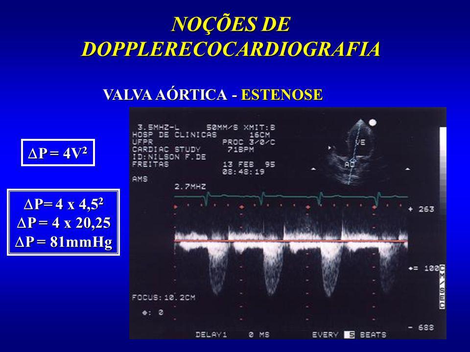 NOÇÕES DE DOPPLERECOCARDIOGRAFIA VALVA AÓRTICA - ESTENOSE P = 4V 2 P = 4V 2 P= 4 x 4,5 2 P= 4 x 4,5 2 P = 4 x 20,25 P = 4 x 20,25 P = 81mmHg P = 81mmH