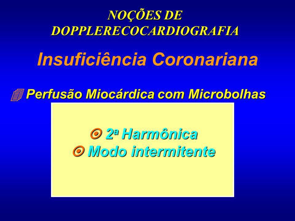 Insuficiência Coronariana Perfusão Miocárdica com Microbolhas 2 a Harmônica 2 a Harmônica Modo intermitente Modo intermitente