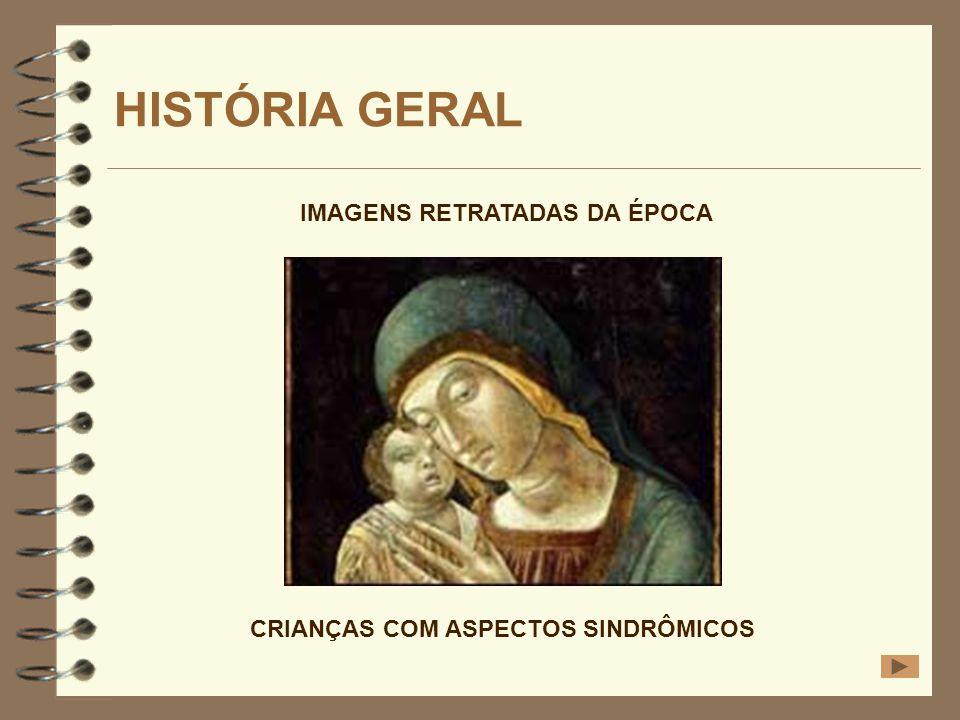 HISTÓRIA GERAL IMAGENS RETRATADAS DA ÉPOCA CRIANÇAS COM ASPECTOS SINDRÔMICOS