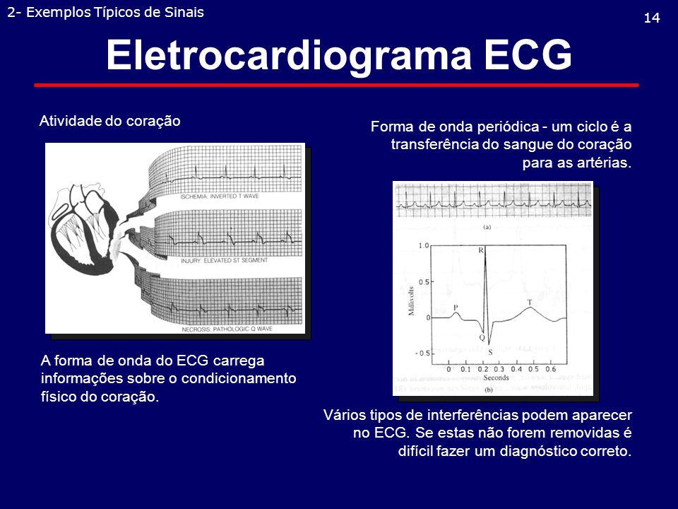 Eletrocardiograma ECG Atividade do coração 14 2- Exemplos Típicos de Sinais Vários tipos de interferências podem aparecer no ECG.