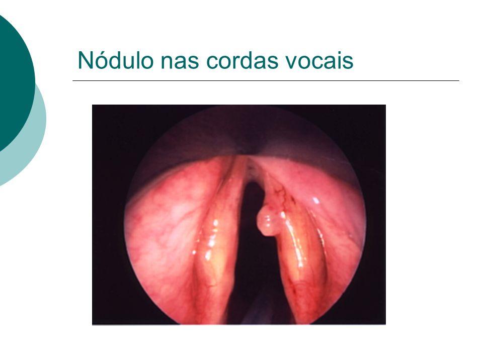 Nódulo nas cordas vocais