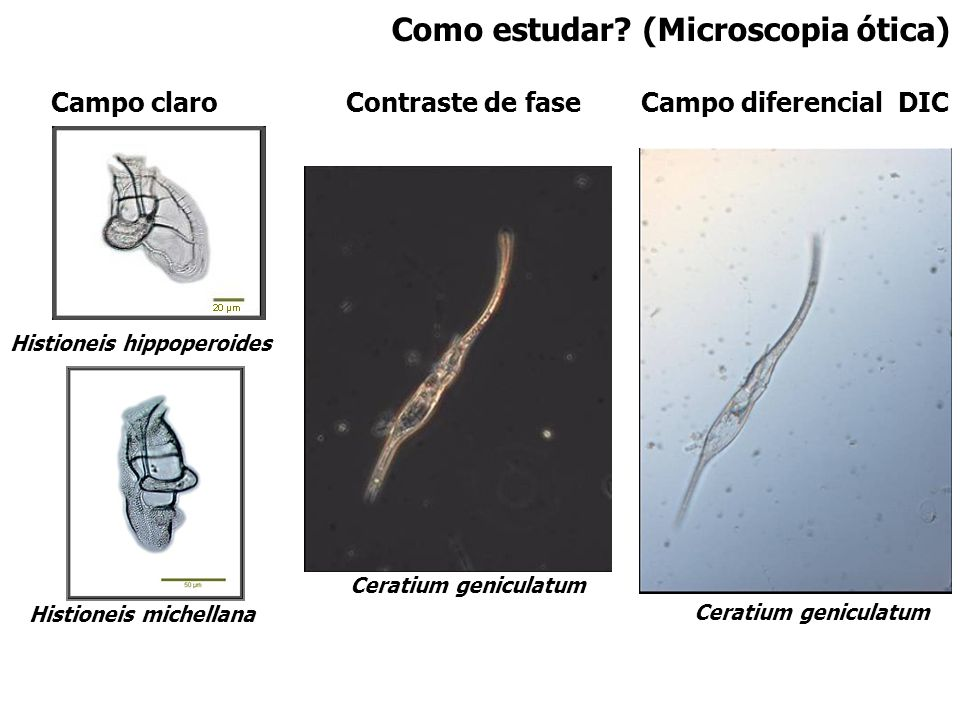 Como estudar? (Microscopia ótica) Campo claroCampo diferencial DICContraste de fase Histioneis hippoperoides Histioneis michellana Ceratium geniculatu