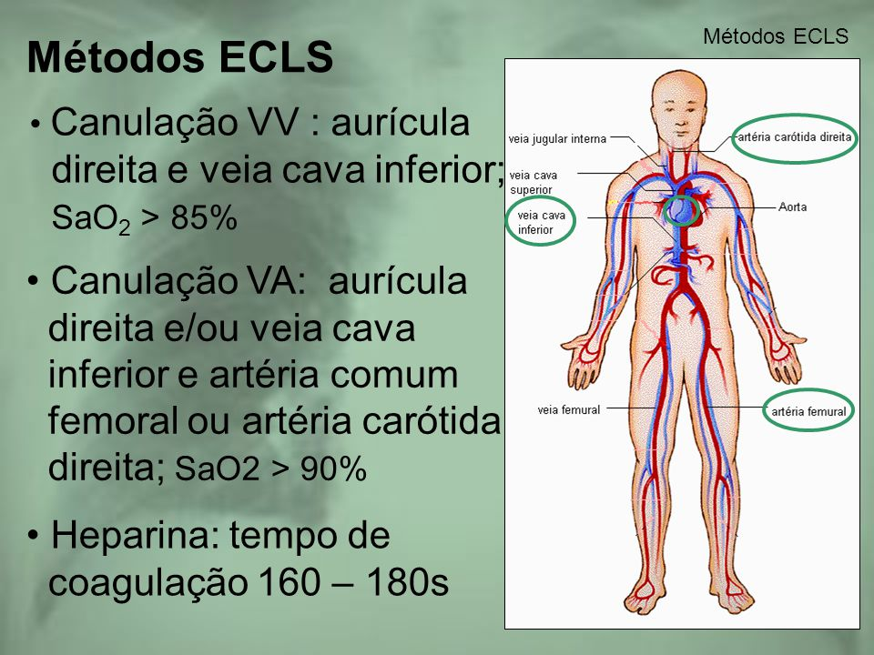 Métodos ECLS Canulação VV : aurícula direita e veia cava inferior; SaO 2 > 85% Métodos ECLS Canulação VA: aurícula direita e/ou veia cava inferior e a